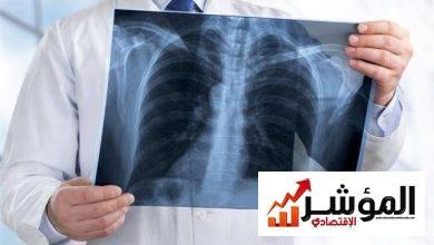 صورة تعرف على تفاصيل المؤتمر السنوي الـ19 لأمراض وحساسية الصدر