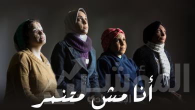 صورة أهل مصر تطلق حملة للتوعية بمخاطر الجهل والتنمر بضحايا الحروق