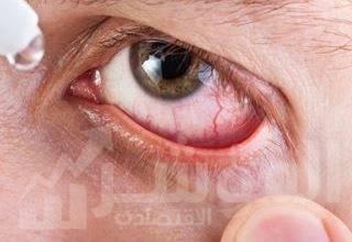 صورة الخبراء في مستشفى مورفيلدز دبي للعيون يحذرون أفراد المجتمع من مخاطر تطور حالة الساد